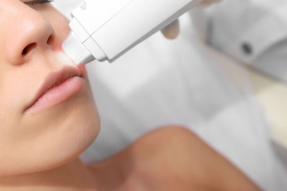 Laser Hair Removal for uncommon areas