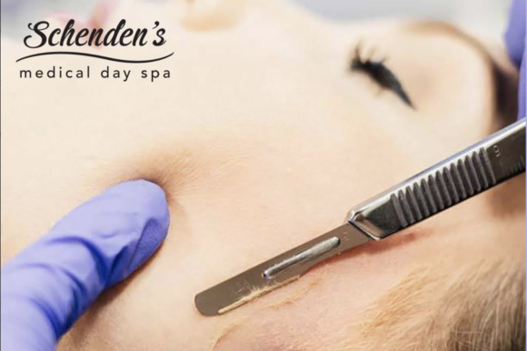 Dermaplaning at home? Return to the spa for this treatment.